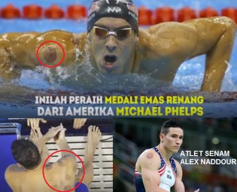 atlet-olimpiade-as-suka-bekam